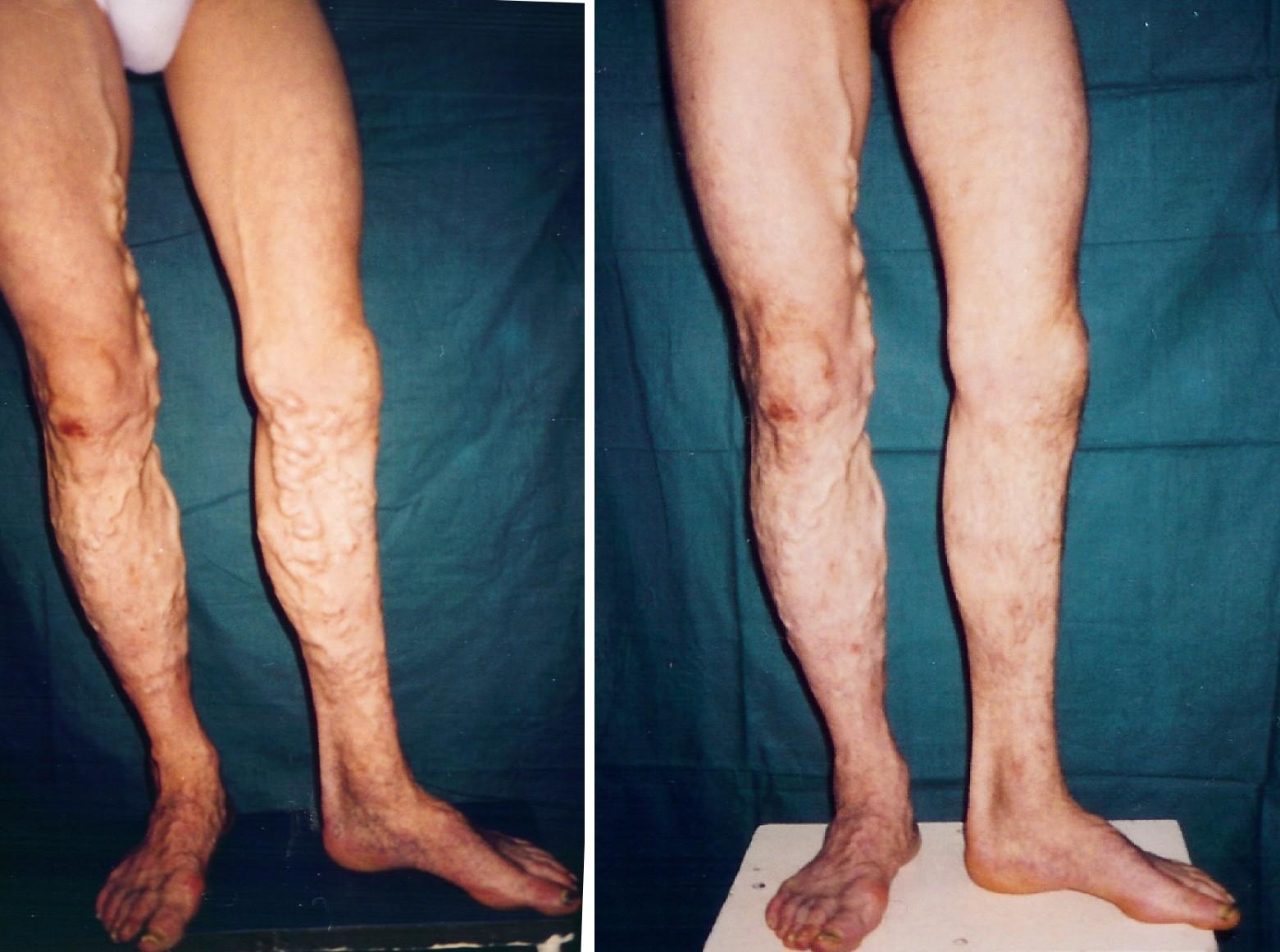 varicoză tratament foto înainte și după varicoză în clitoris
