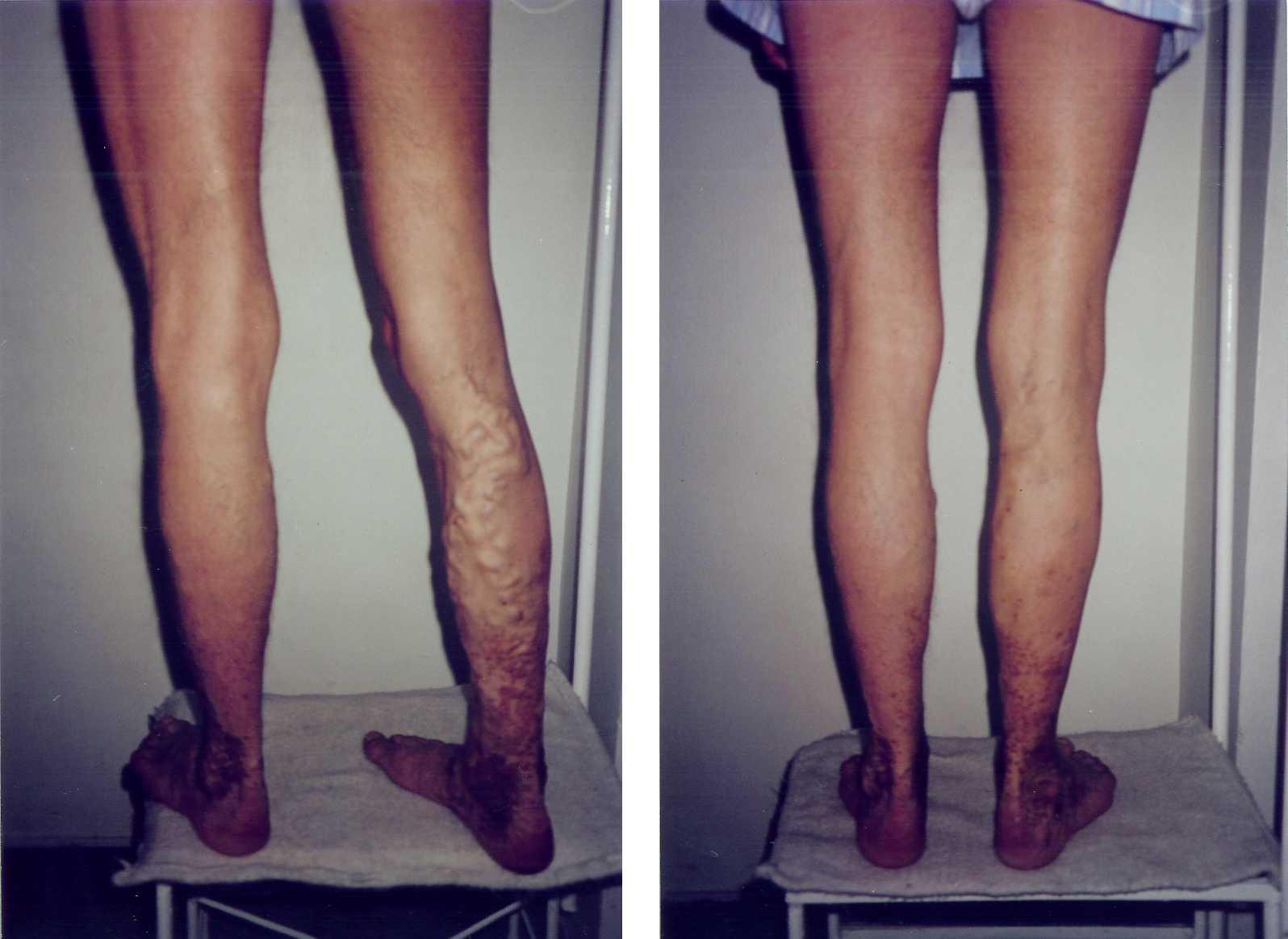 înainte și după operația de varicoză